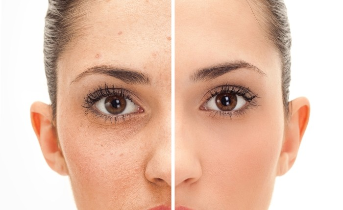How to Get Rid of Fordyce Spots - Thrive Global