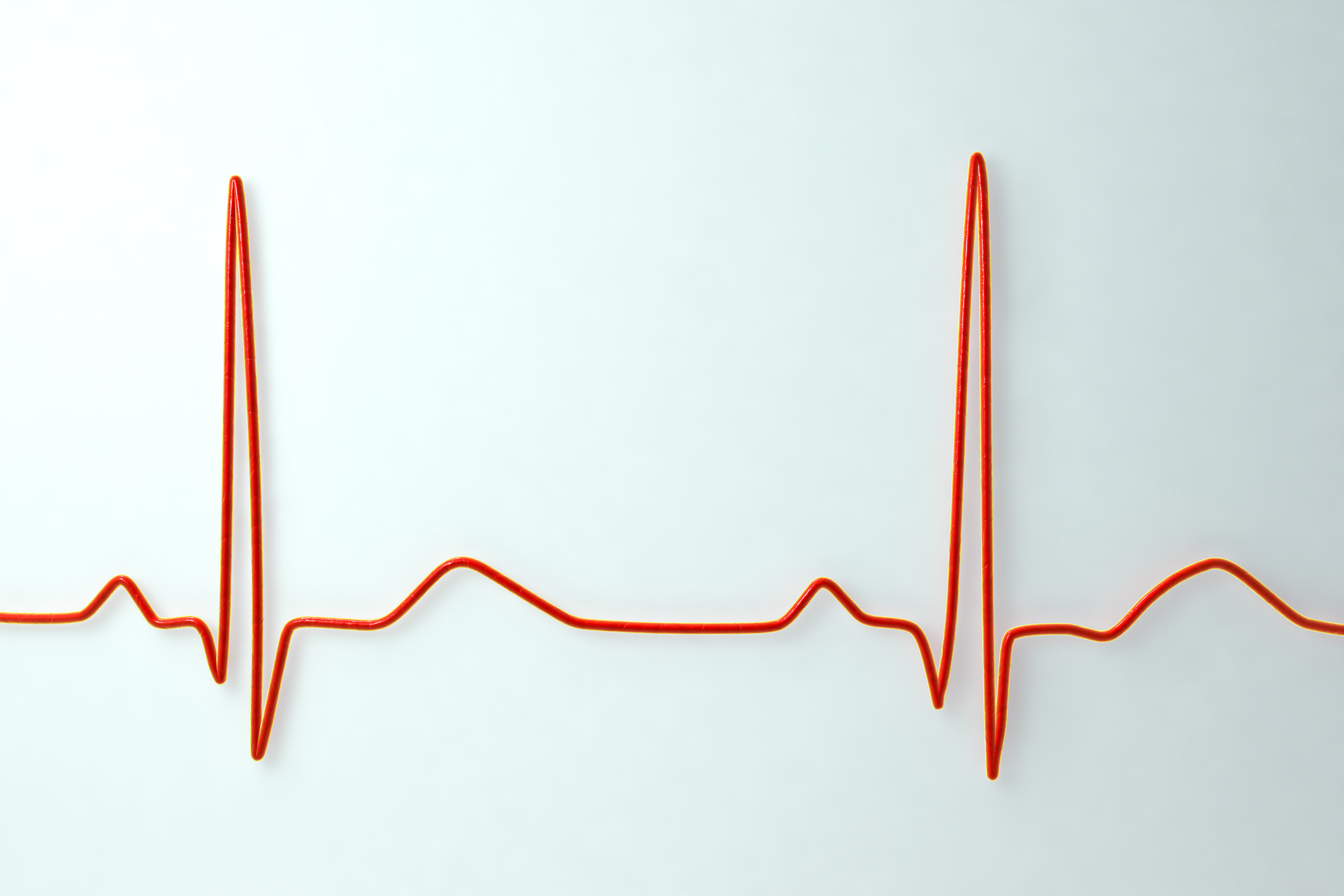 ECG. Computer illustration of an electrocardiogram (ECG) showing a normal heart rate.