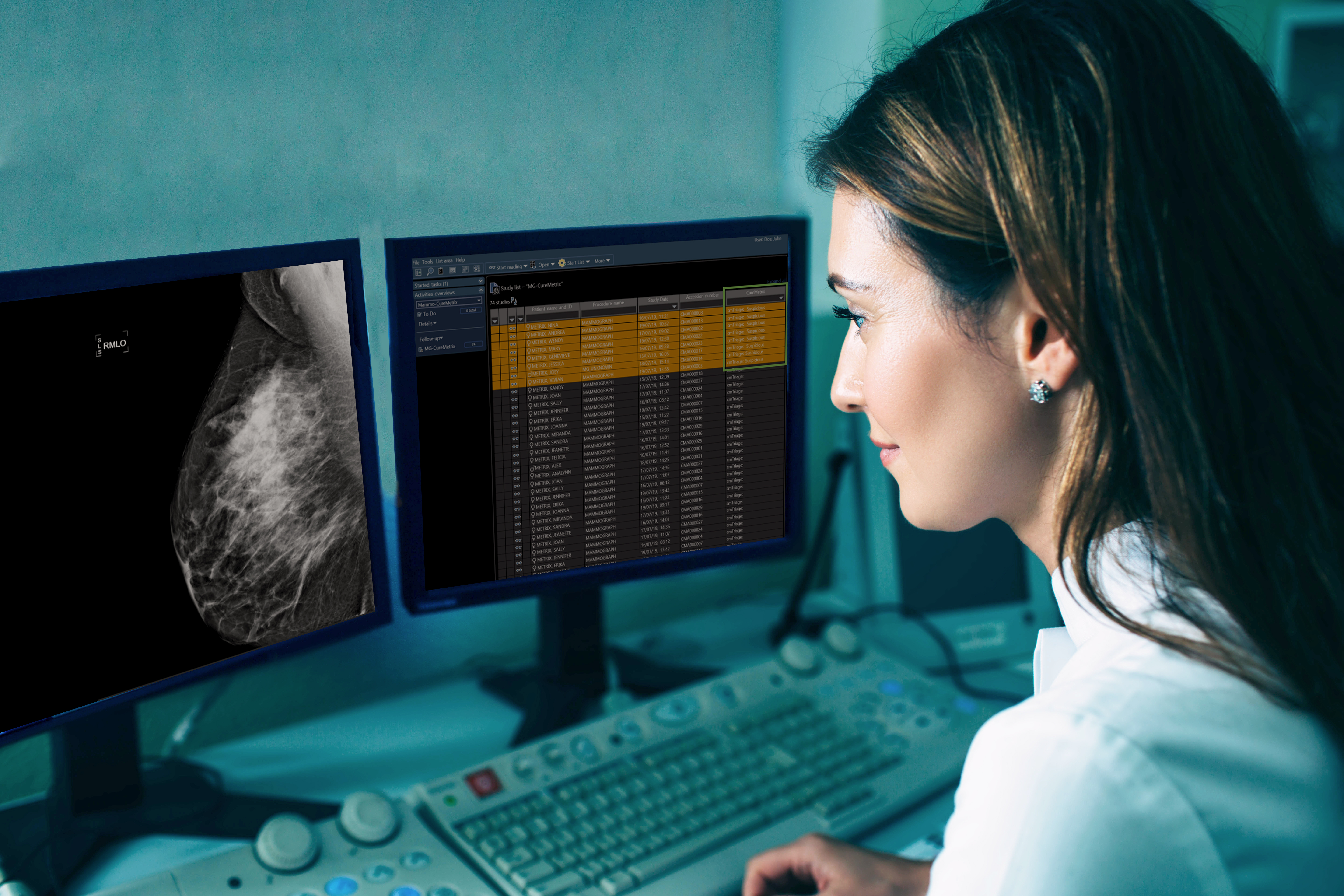 CureMetrix artificial intelligence aids radiologist in improving breast cancer detection