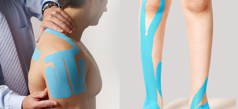 Benefits of Kinesiology Taping